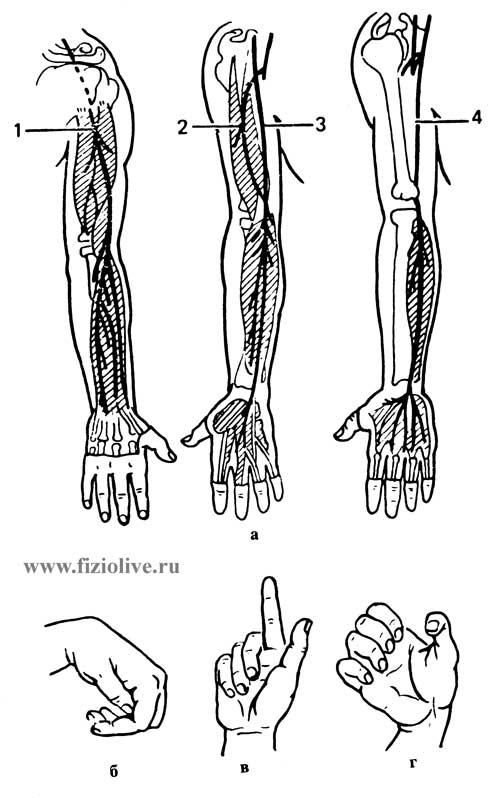 Нервы верхней конечности и