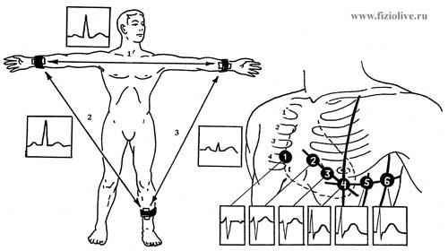 Схема наложения электродов при стандартных (а) и грудных (б) отведениях...