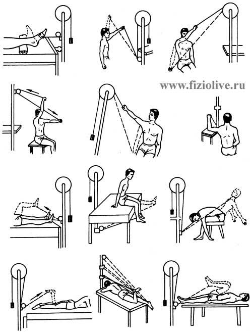 Лечебная физкультура при травмах опорных конечностей