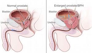 как влияет на потенцию простатита